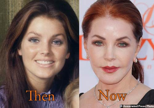 Priscilla Presley Before And After Plastic Surgery 1
