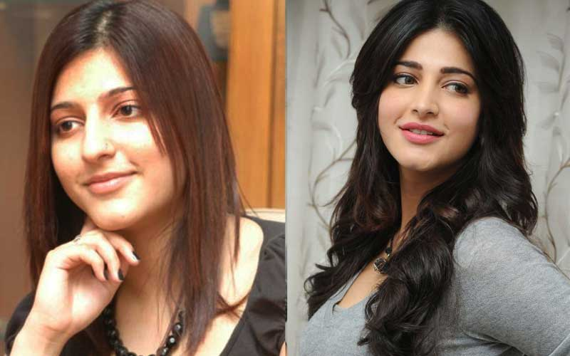Bollywood Actress Before And After Plastic Surgery 1