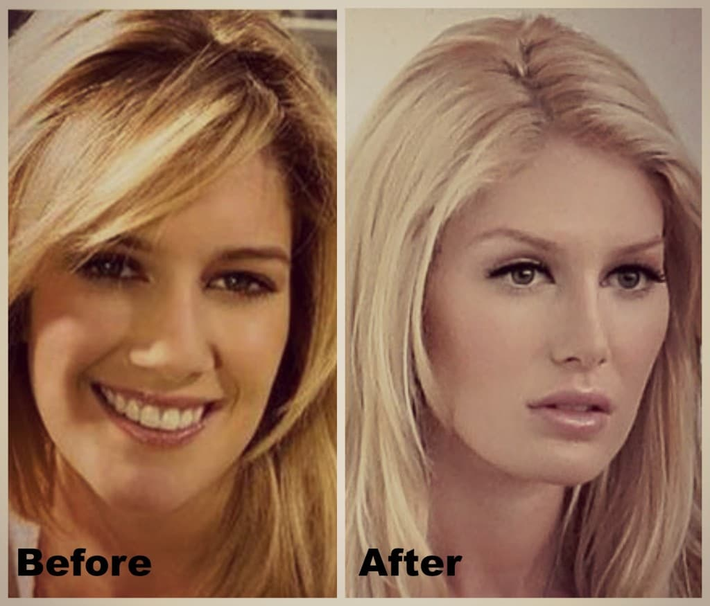 Heidi Montag Before After Plastic Surgery Pictures 1