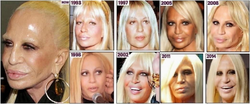Horrible Plastic Surgery Before And After Pictures 1