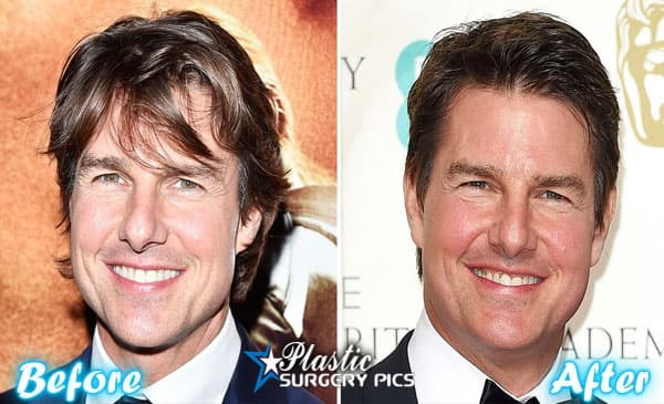 Tom Cruise Before And After Plastic Surgery Photos 1