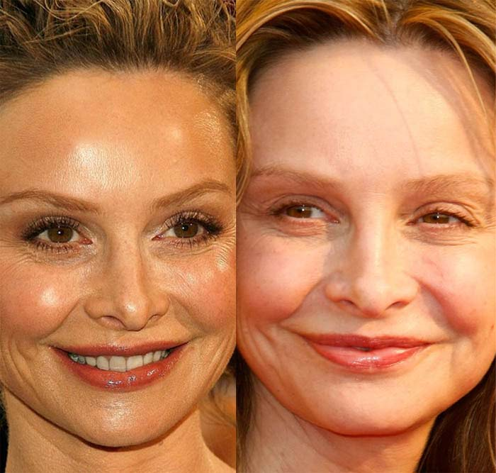 Calista Flockhart Plastic Surgery Before And After 1
