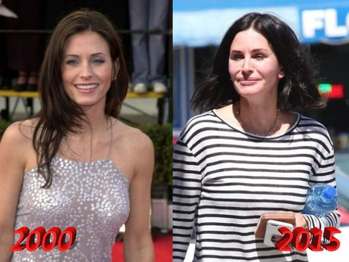 Courtney Cox Plastic Surgery Before And After 2012 1