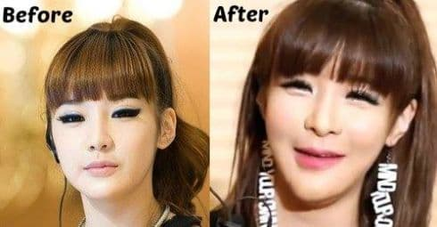Park Bom Plastic Surgery Before And After Pictures 1