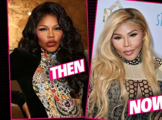 Angel Brinks Before & After Plastic Surgery Pics 1