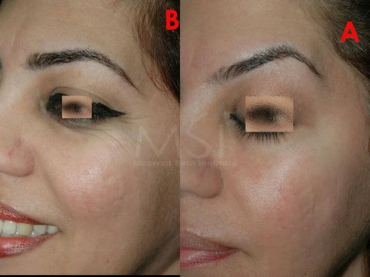 Bad Eye Brow Lift Plastic Surgery Before And After 1