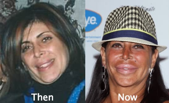Big Ang Mob Wives Before And After Plastic Surgery 1