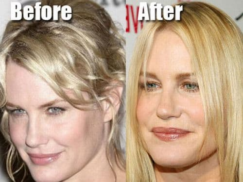 Daryl Hannah Plastic Surgery Before And After Pics 1