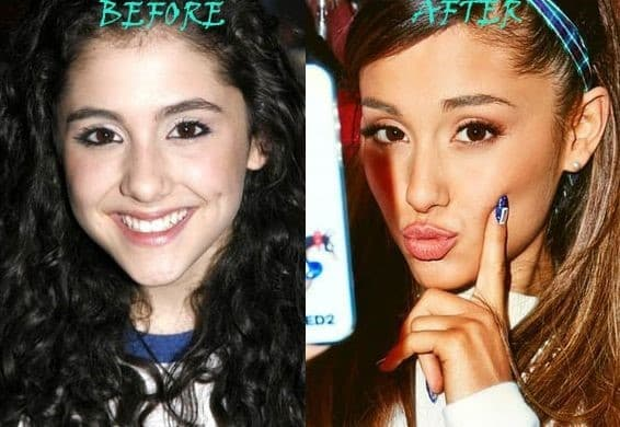 Hollywood Actress Plastic Surgery Before And After 1