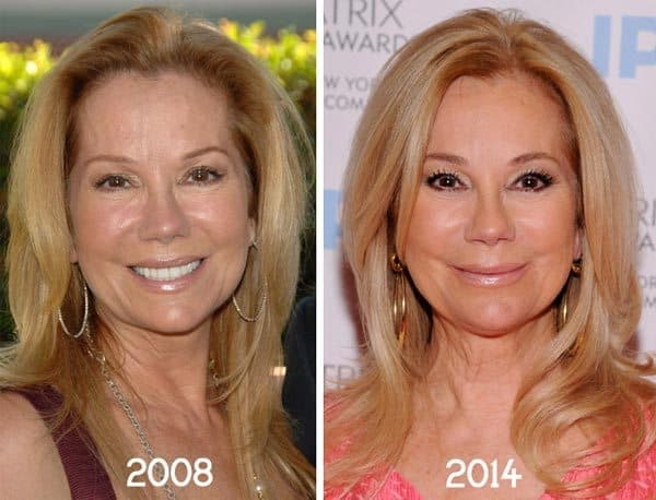 Jennifer Coolidge Before And After Plastic Surgery 1