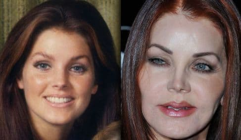 Plastic Surgery Before And After Priscilla Presely 1