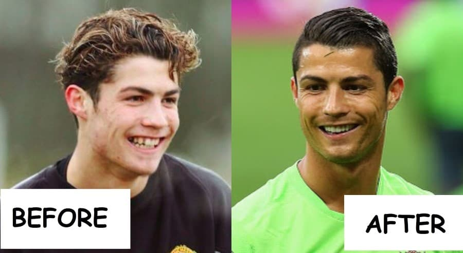 Cristiano Ronaldo Before And After Plastic Surgery 1