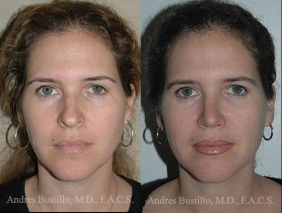 Facial Plastic Surgery Before After Transformation 1