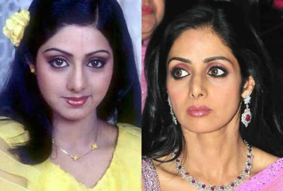Pics Of Bollywood Actresses Before Plastic Surgery 1