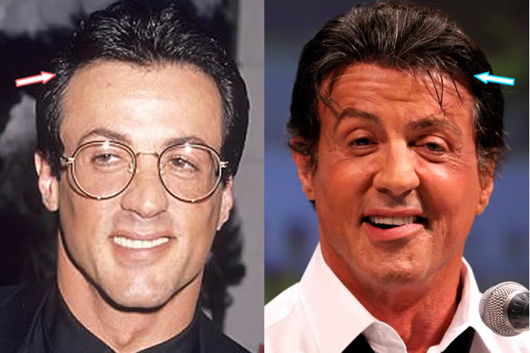 Sylvester Stalone Before And After Plastic Surgery 1