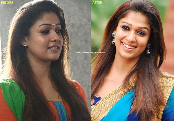 Tollywood Actress Before And After Plastic Surgery 1