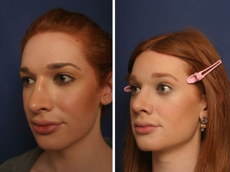 Plastic Surgery Forehead Feminization Before After Best photo - 1