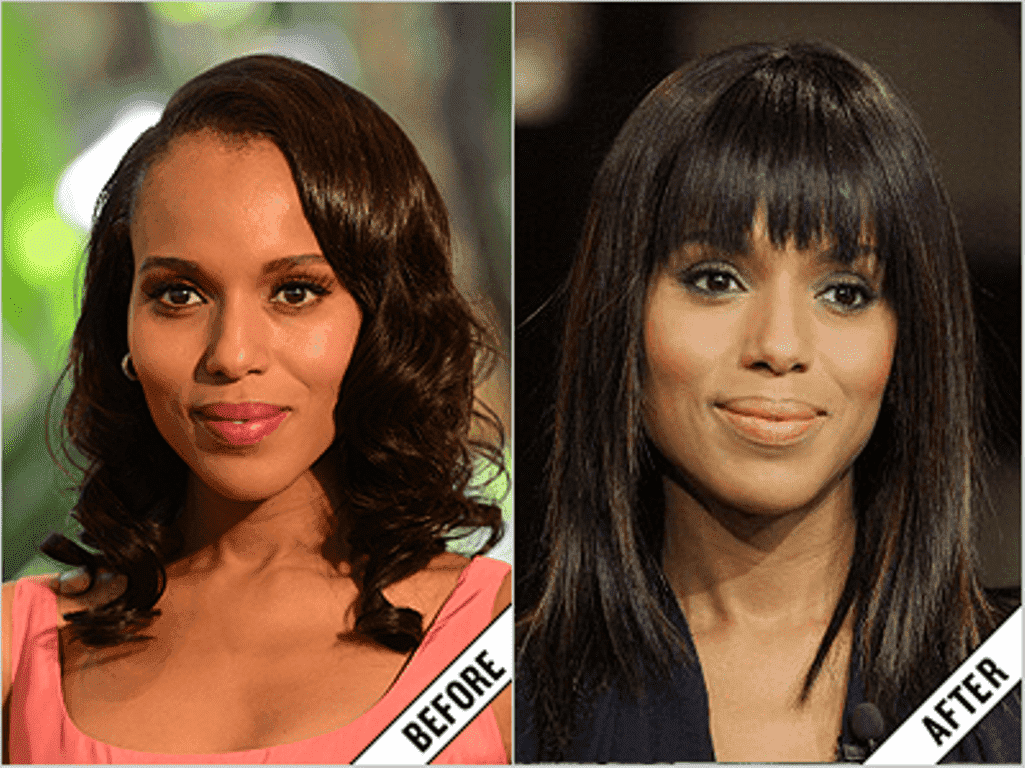 Black Celebrities Before And After Plastic Surgery 1