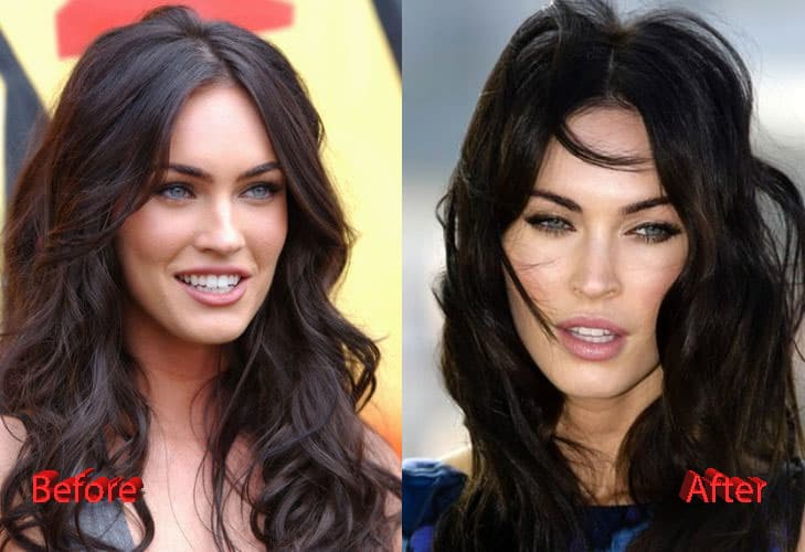 Megan Fox Before And After Plastic Surgery Pictures 1