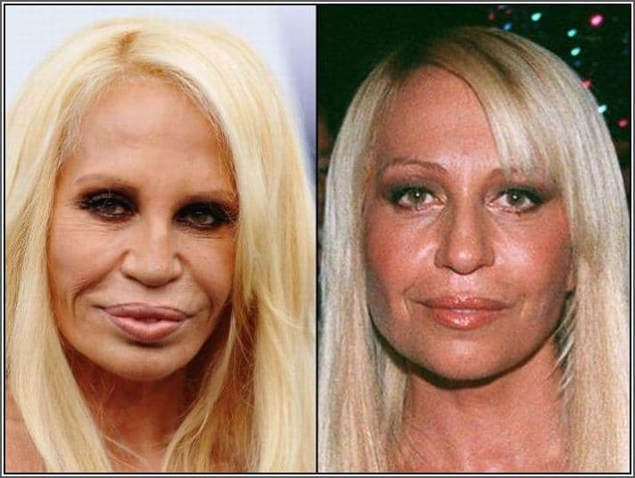 Plastic Surgery Disasters Pictures Before And After 1