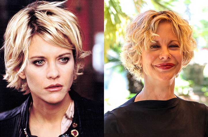 Famous Celebrities Before And After Plastic Surgery 1
