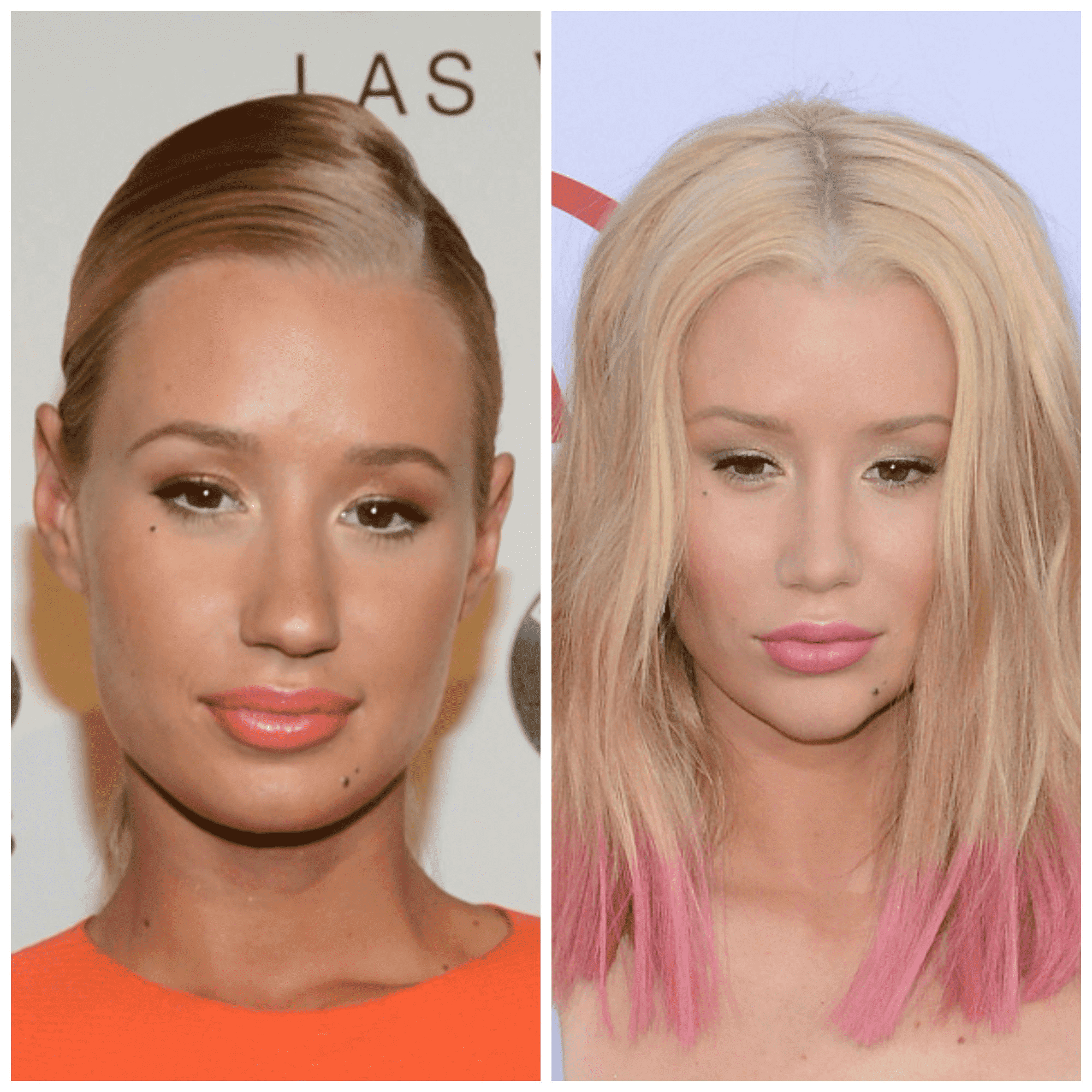 Iggy Azalea Plastic Surgery Face Before And After 1
