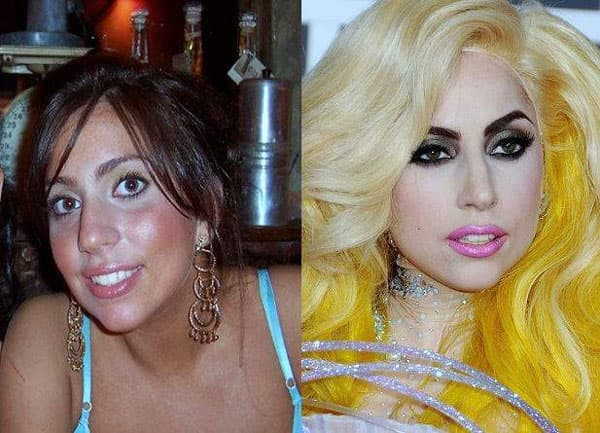 Miley Cyrus Plastic Surgery Before And After Photos 1