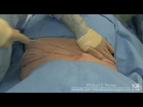 Plastic Surgery Liposuction Before And After Photos 1