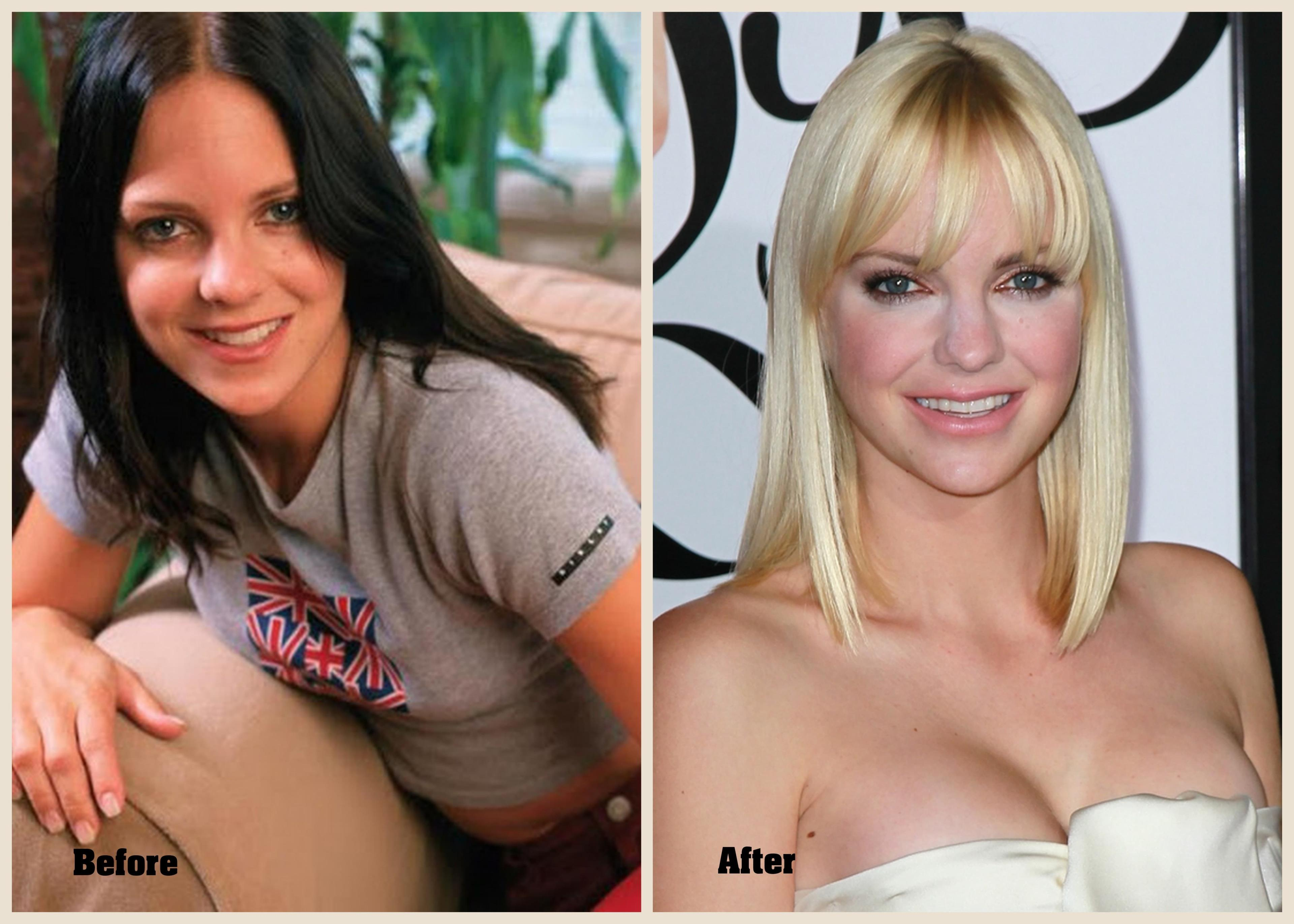 Anna Nicole Smith Before And After Plastic Surgery 1