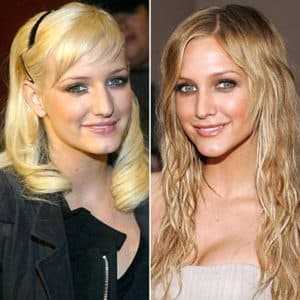 Ashlee Simpson Plastic Surgery Before After 1