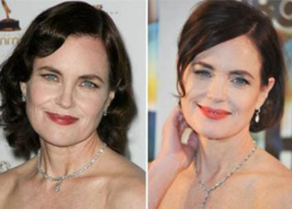 Elizabeth Mcgovern Plastic Surgery Before And After 1