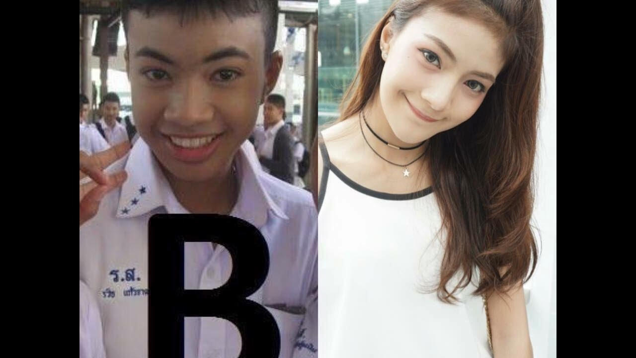 Plastic Surgery In Thailand Before And After Photos 1