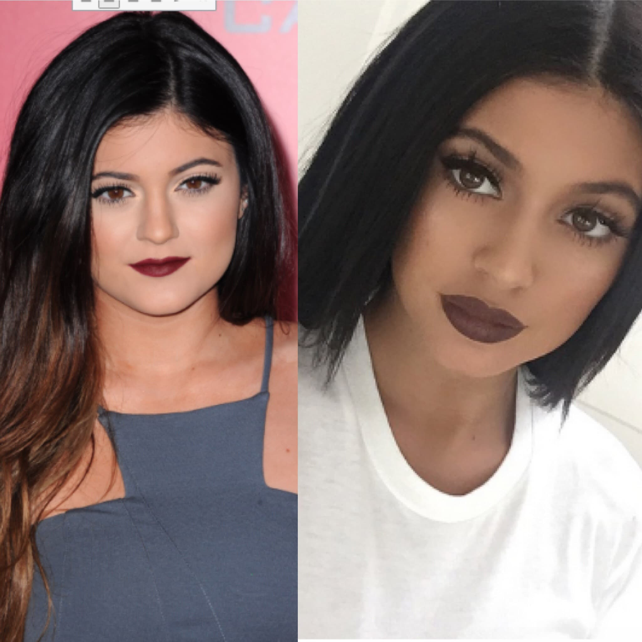Kylie Jenner Lips Before And After Plastic Surgery 1
