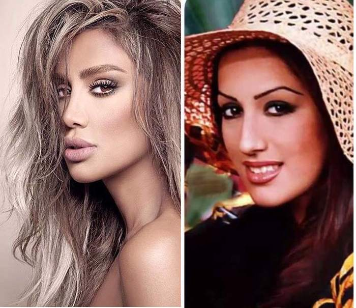 Maya Diab Before And After Plastic Surgery Pictures 1