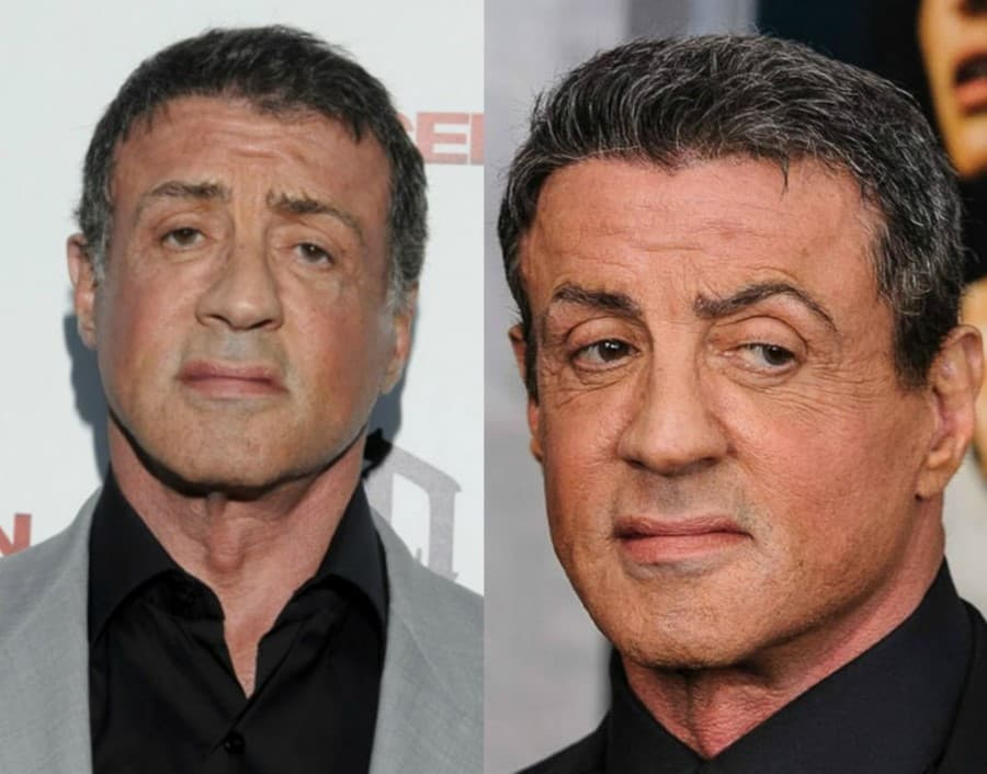 Silverster Stolane Before And After Plastic Surgery 1
