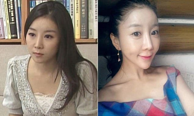 South Korean Woman Before And After Plastic Surgery 1