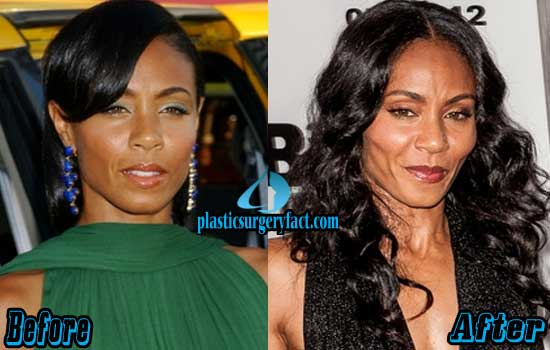 Jada Pinkett Smith Plastic Surgery Before And After 1