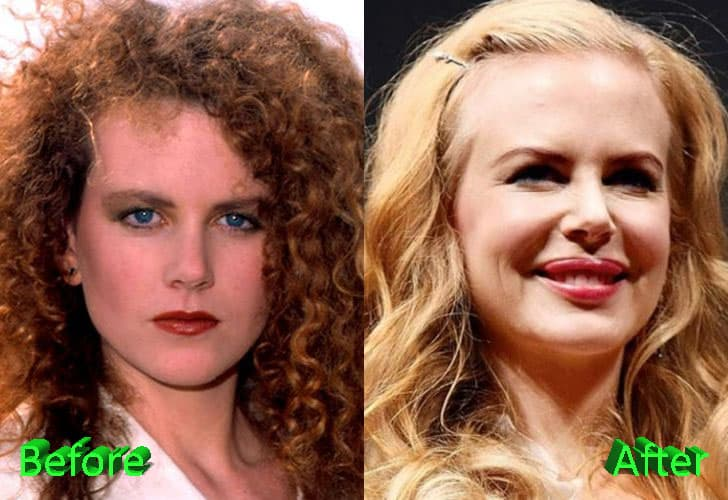 Nicole Kidman Before After Plastic Surgery Pictures 1