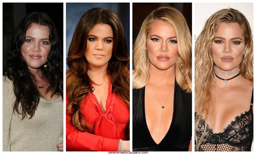 Pictures Of Klohe Kardashian Before Plastic Surgery 1
