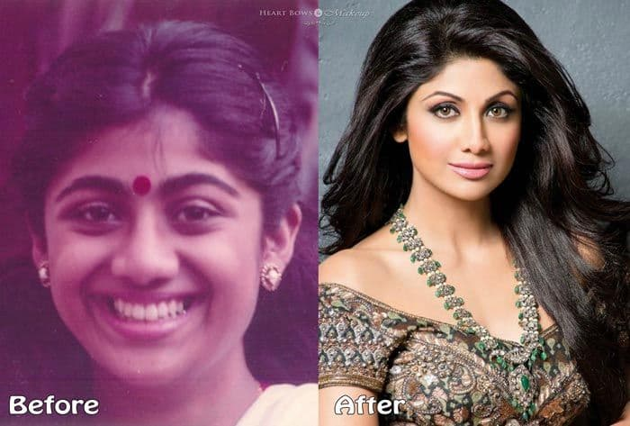 Plastic Surgery Before And After Indian Celebrities 1