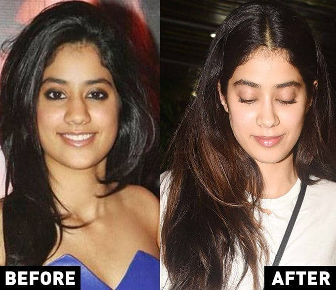 Plastic Surgery Of Bollywood Stars Before And After 1