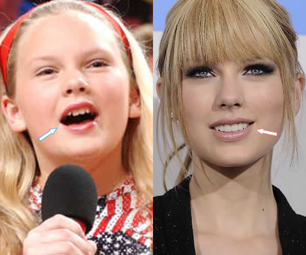 Taylor Swift Before And After Teeth Plastic Surgery 1