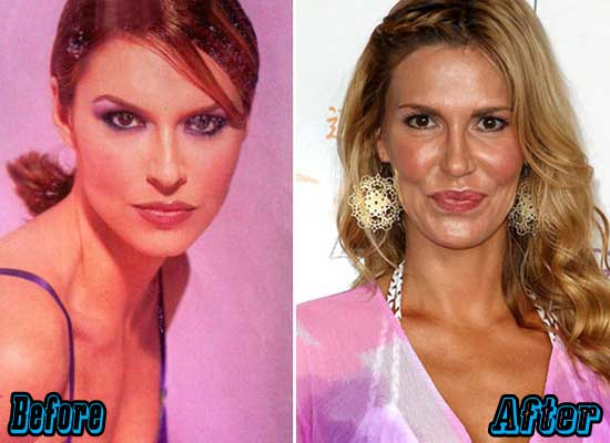 Yolanda Real Housewives Before And After Plastic Surgery photo - 1