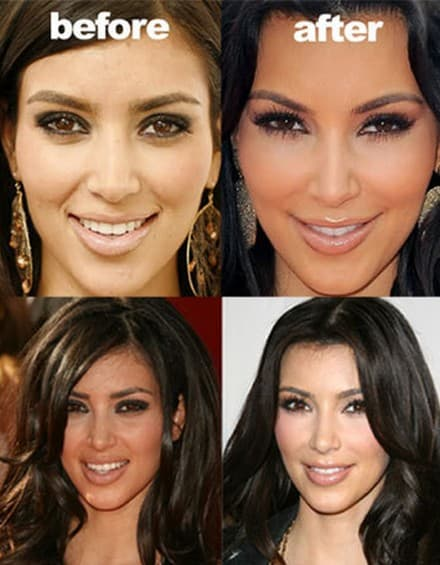 Kim Kardashian Face Before And After Plastic Surgery 1