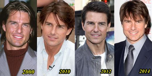 Tom Cruise Plastic Surgery Pictures Before And After 1