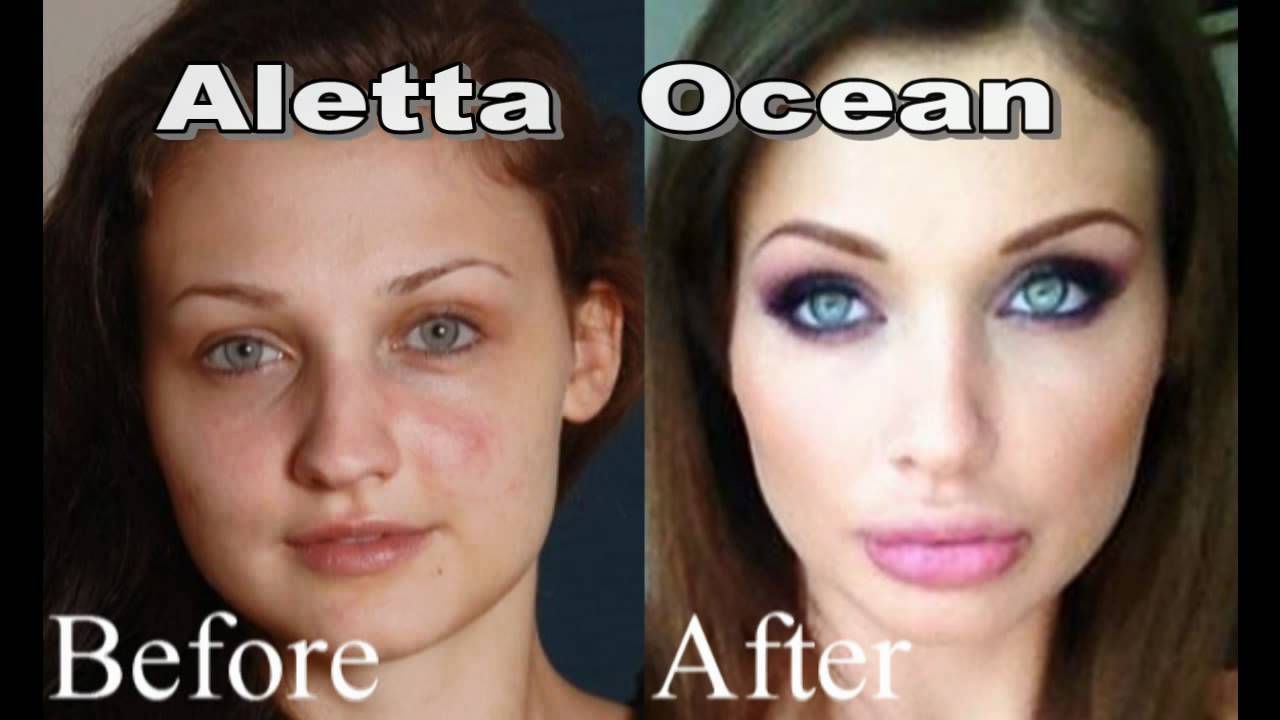Aletta Ocean Before And After Plastic Surgery Images 1