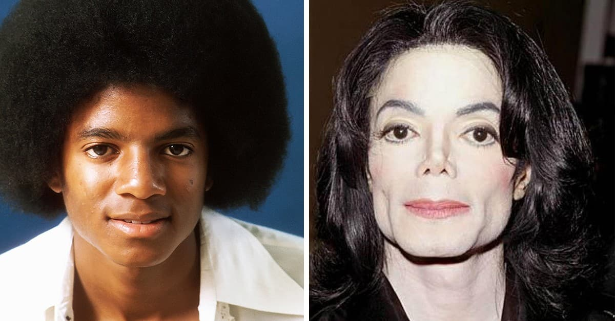 Before And After Micheal Jackson Got Plastic Surgery 1