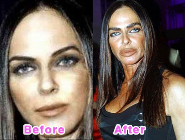 Celebrity Plastic Surgery Disasters Before And After 1