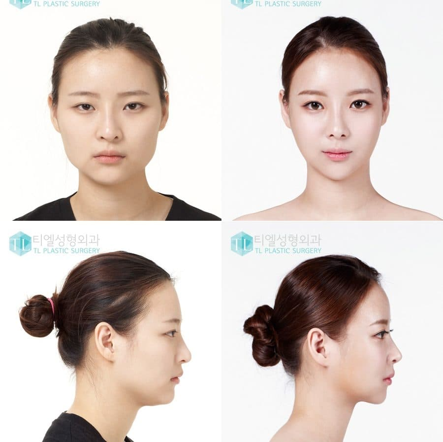 Korean Star Before And After Plastic Surgery 1