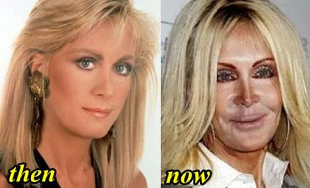 Nancy Pelosi Plastic Surgery Before And After Photos 1